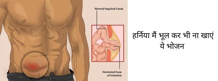 hernia-treatment